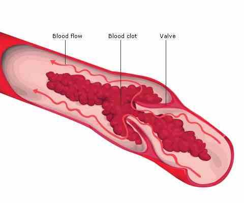dvt symptoms, Human Body