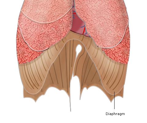 Impaired Diaphragmatic Function